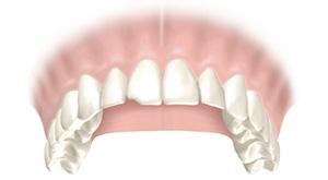 Частичное разрушение зуба