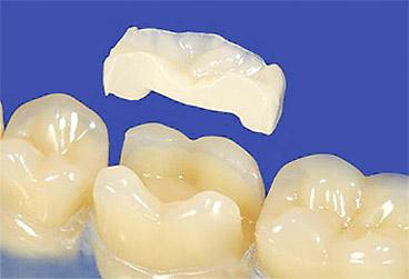 Восстановление зуба керамическими вкладками