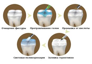 Этапы процедуры герметизации фиссур