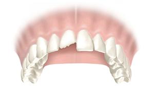 Разрушение зубов наполовину