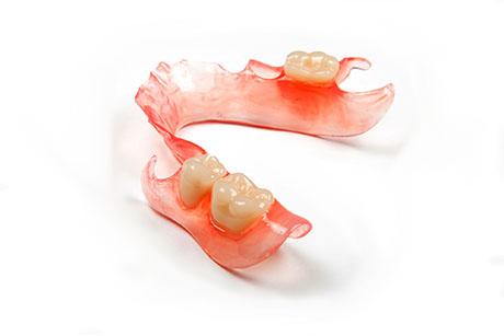 Нейлоновый протез для задних зубов