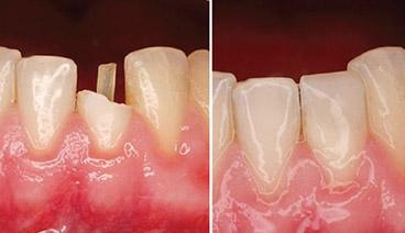 Восстановление зуба композитными материалами