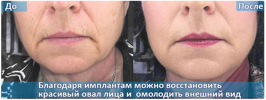 impl1-1.jpg