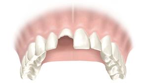 Почти полное разрушение зубов