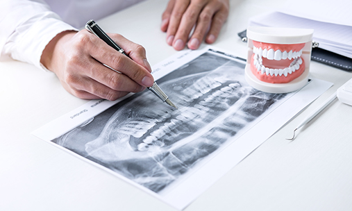 Врач-стоматолог анализирует снимок