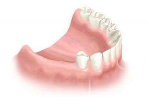Протезирование нескольких зубов