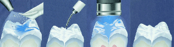 Процедура по герметизации фиссур