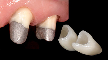 Восстановление зубов штифтовой вкладкой и коронкой