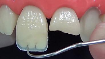Восстановление зуба винирами